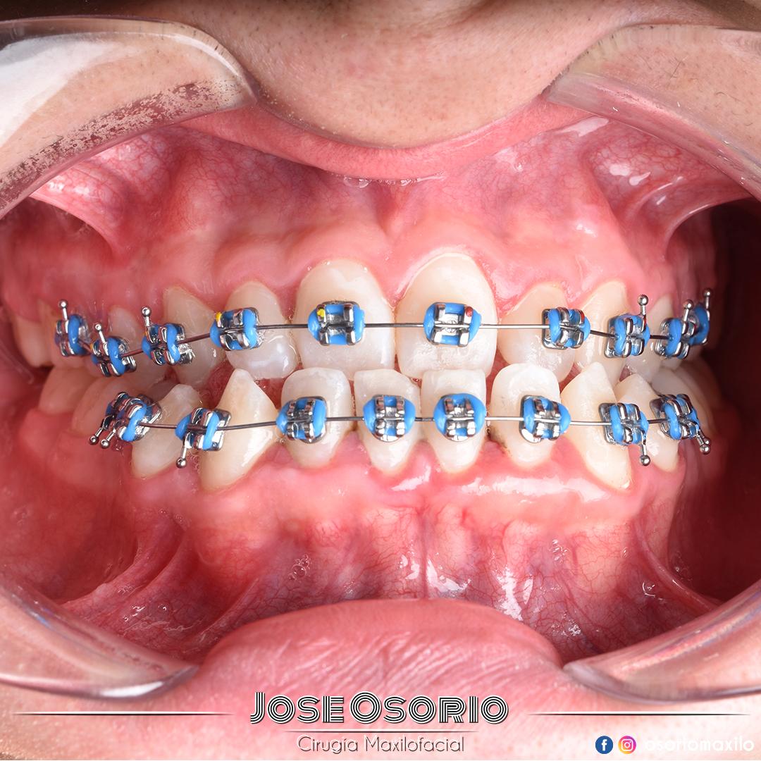Doctor Jose Osorio Cirujano Maxilofacial cirugía