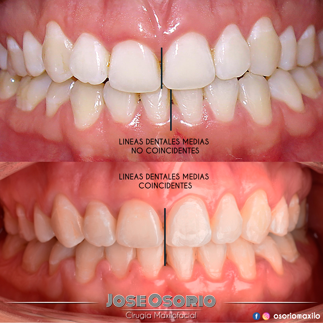 osorio maxilofacial cirugía