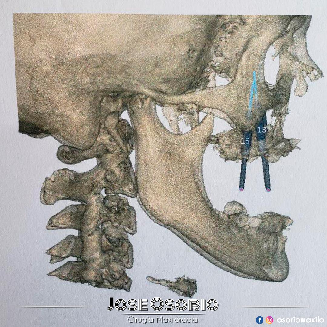 osorio maxilo Facial cirugía bogotá cigomaticos
