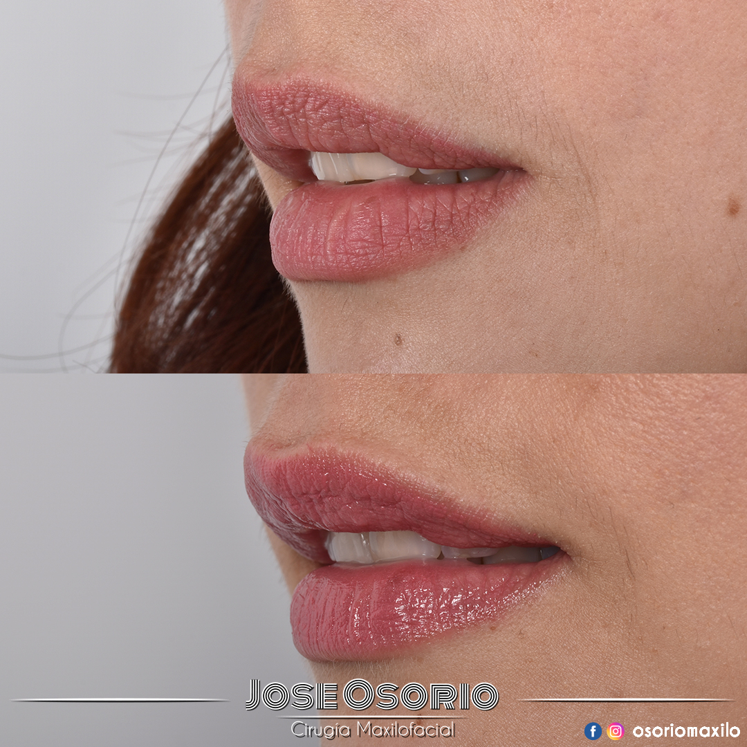 osorio maxilo Facial cirugía bogotá