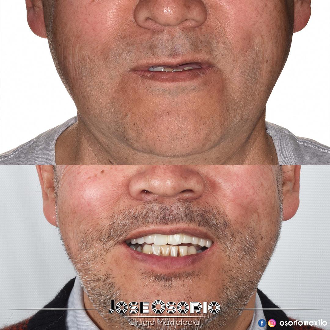osorio maxilo Facial cirugía bogotá implantes